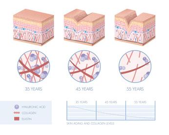 Processo di invecchiamento della pelle